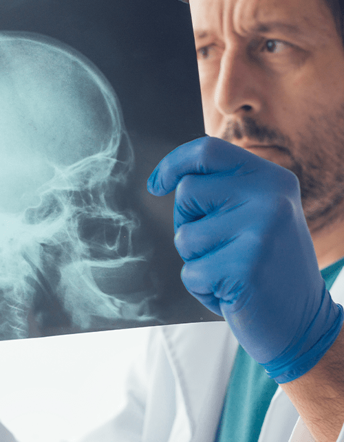 Photo of a doctor examining an x-ray of a person's skull